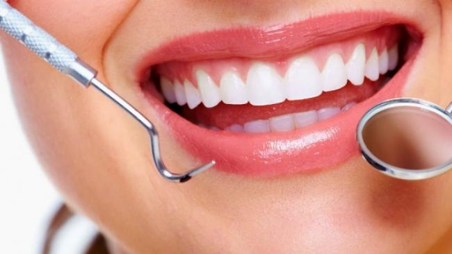 Cara Alami Agar Gigi Tampil Lebih Putih