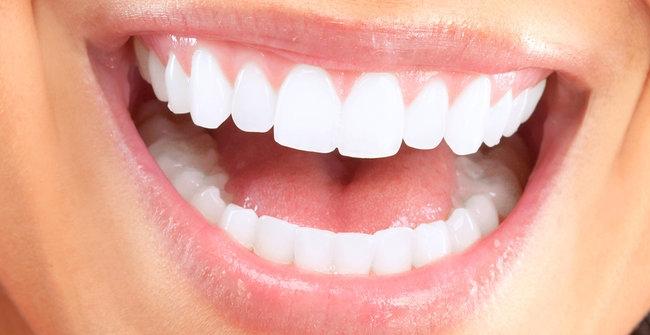 Inilah 5 Cara Putihkan Gigi Kuning Dengan Baking Soda